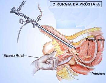 Resultado de imagem para cirurgia da próstata